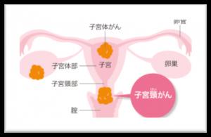 子宮頸がんイメージ